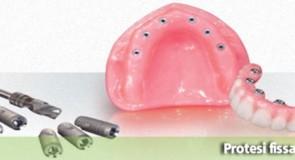 Protesi fissa o removibile? dentista in Albania ci consiglia.