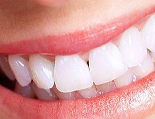 Cos'è la protesi dentale mobile?
