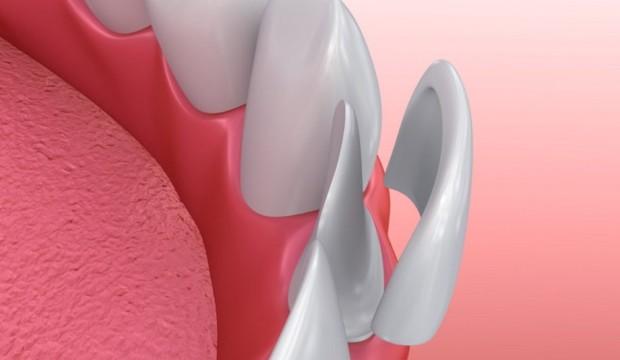 Cosa sono le faccette dentali?