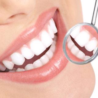 3 buone azioni per evitare carie dentale