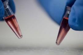 Coronavirus, nuovo test rapido della saliva per diagnosticare in 10 minuti un'infezione da covid19